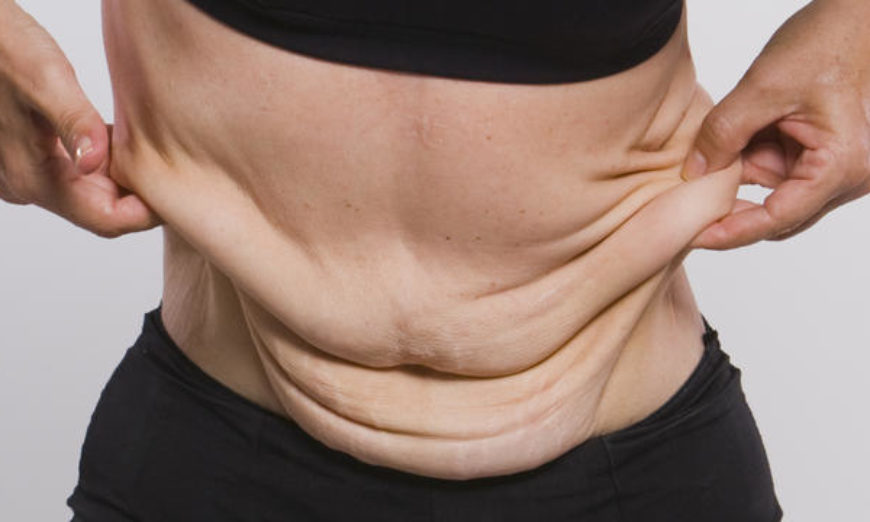 Plástica remove excesso de pele