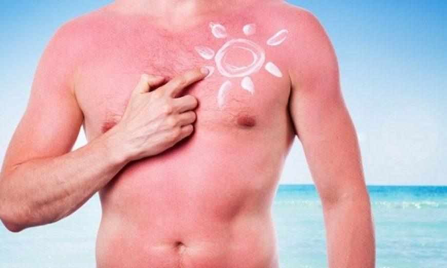 sol-risco-cancer-de-pele