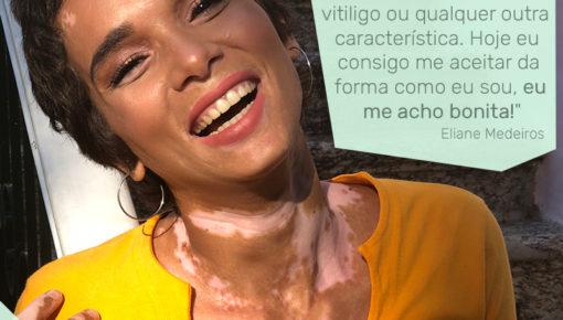 Eliane, modelo com vitiligo