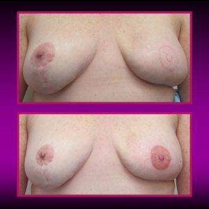 tatuagem pós-mastectomia